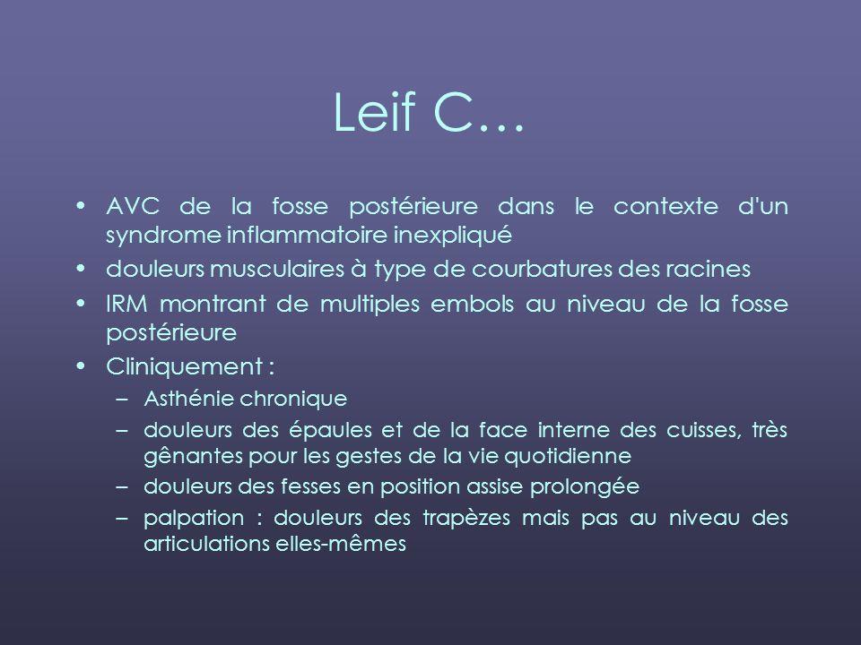 Leif C… AVC de la fosse postérieure dans le contexte d un syndrome inflammatoire inexpliqué. douleurs musculaires à type de courbatures des racines.