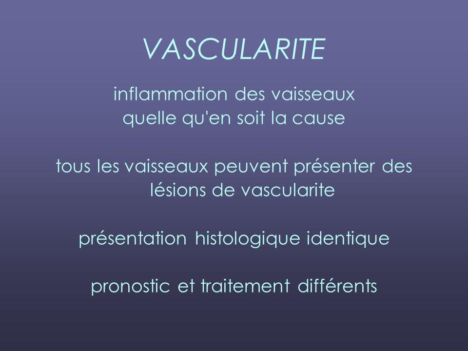VASCULARITE inflammation des vaisseaux quelle qu en soit la cause