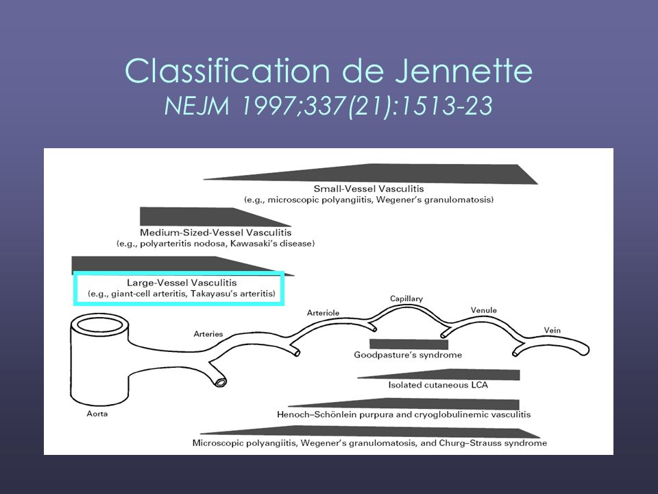 Classification de Jennette NEJM 1997;337(21):1513-23