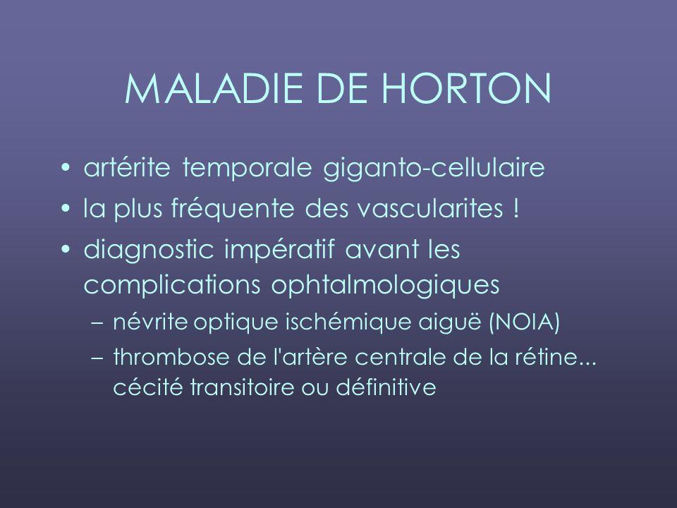 MALADIE DE HORTON artérite temporale giganto-cellulaire
