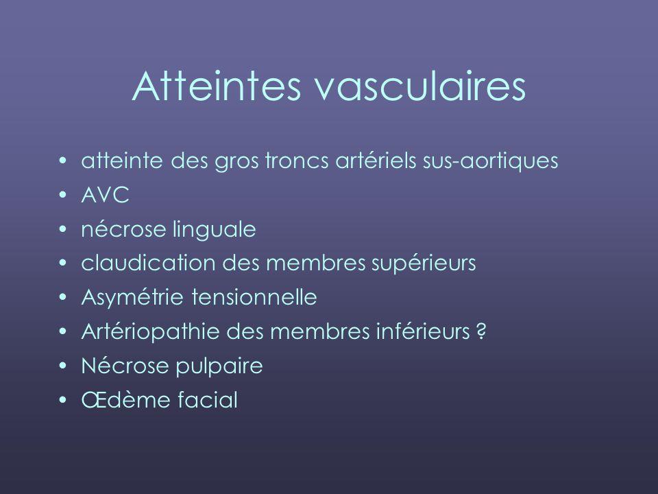 Atteintes vasculaires