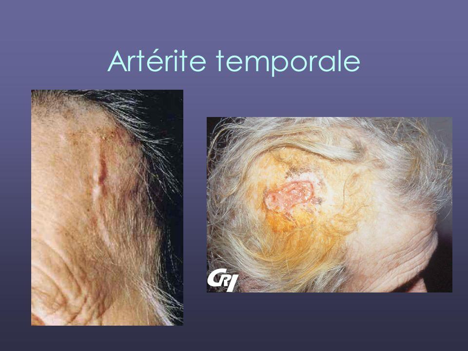 Artérite temporale