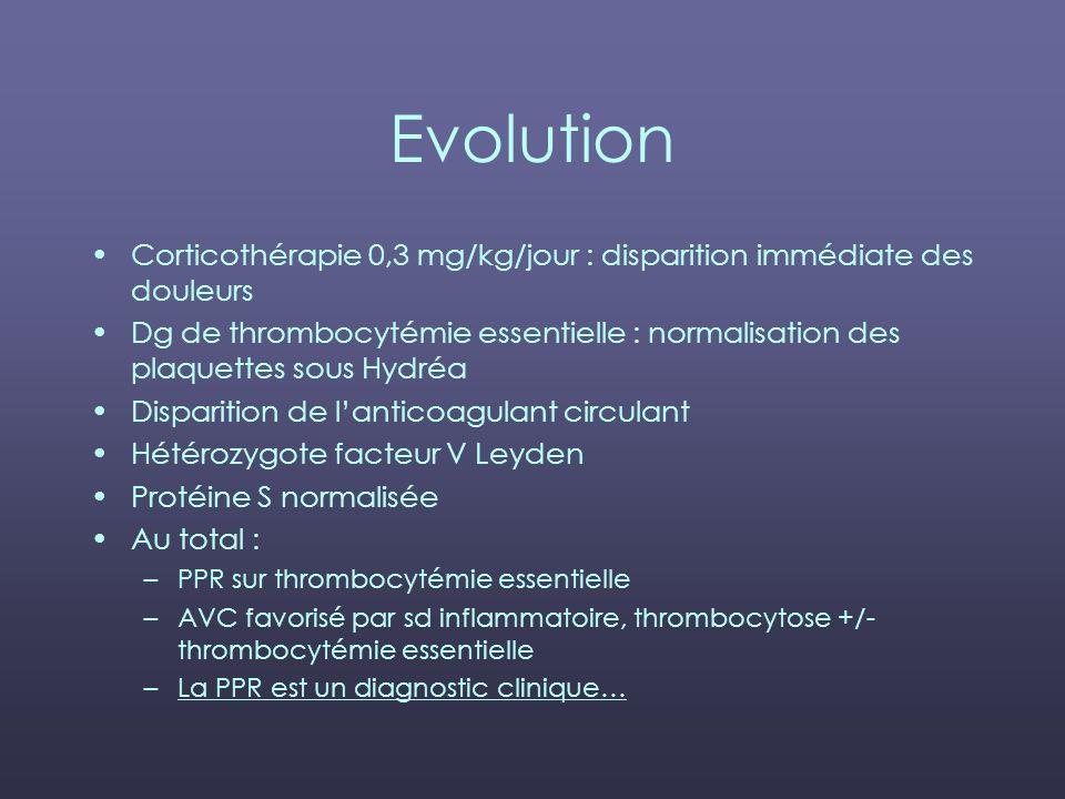 Evolution Corticothérapie 0,3 mg/kg/jour : disparition immédiate des douleurs.