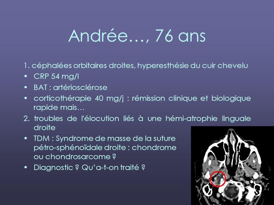 Andrée…, 76 ans 1. céphalées orbitaires droites, hyperesthésie du cuir chevelu. CRP 54 mg/l. BAT : artériosclérose.