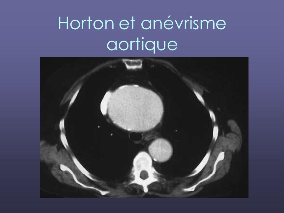 Horton et anévrisme aortique