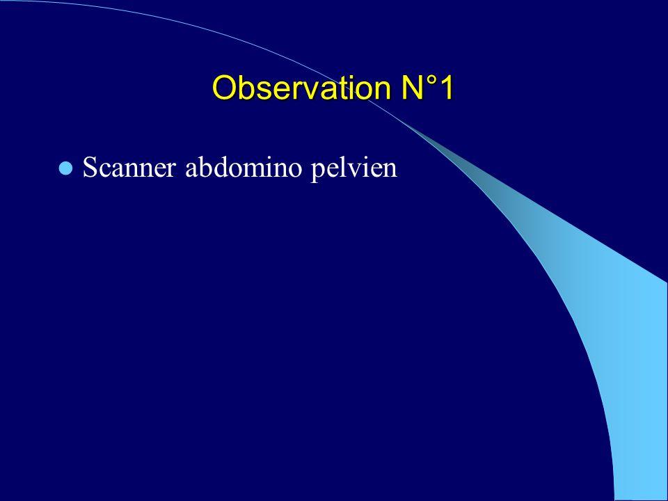 Observation N°1 Scanner abdomino pelvien