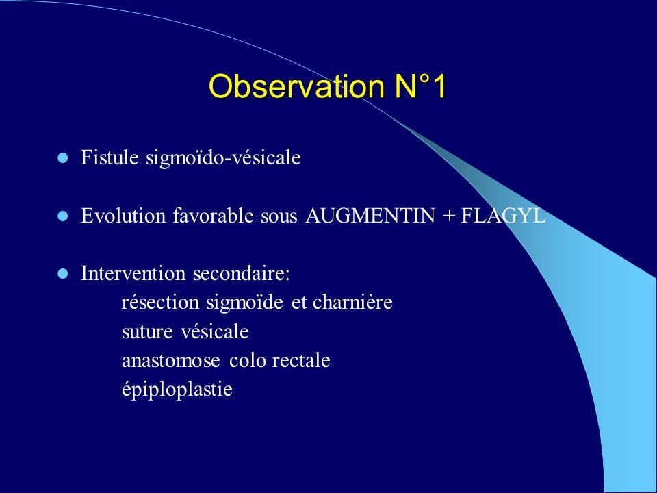 Observation N°1 Fistule sigmoïdo-vésicale