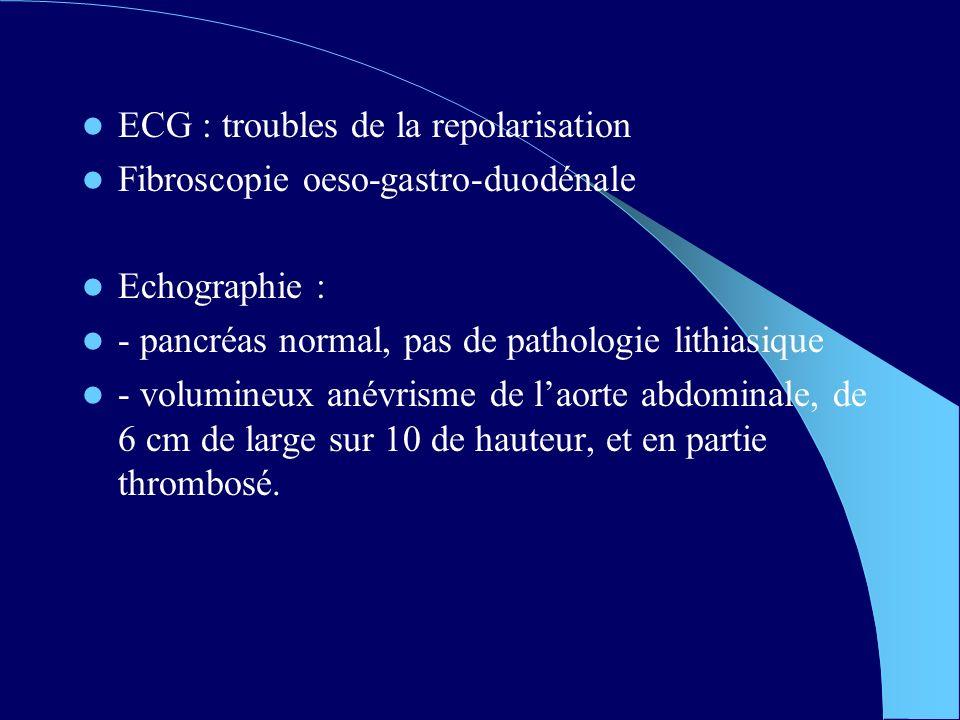 ECG : troubles de la repolarisation