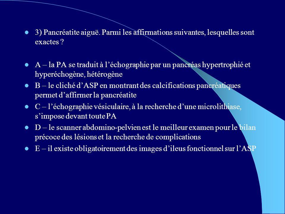 3) Pancréatite aiguë. Parmi les affirmations suivantes, lesquelles sont exactes
