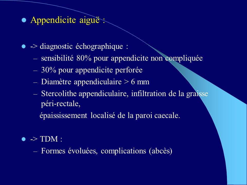 Appendicite aiguë : -> diagnostic échographique :
