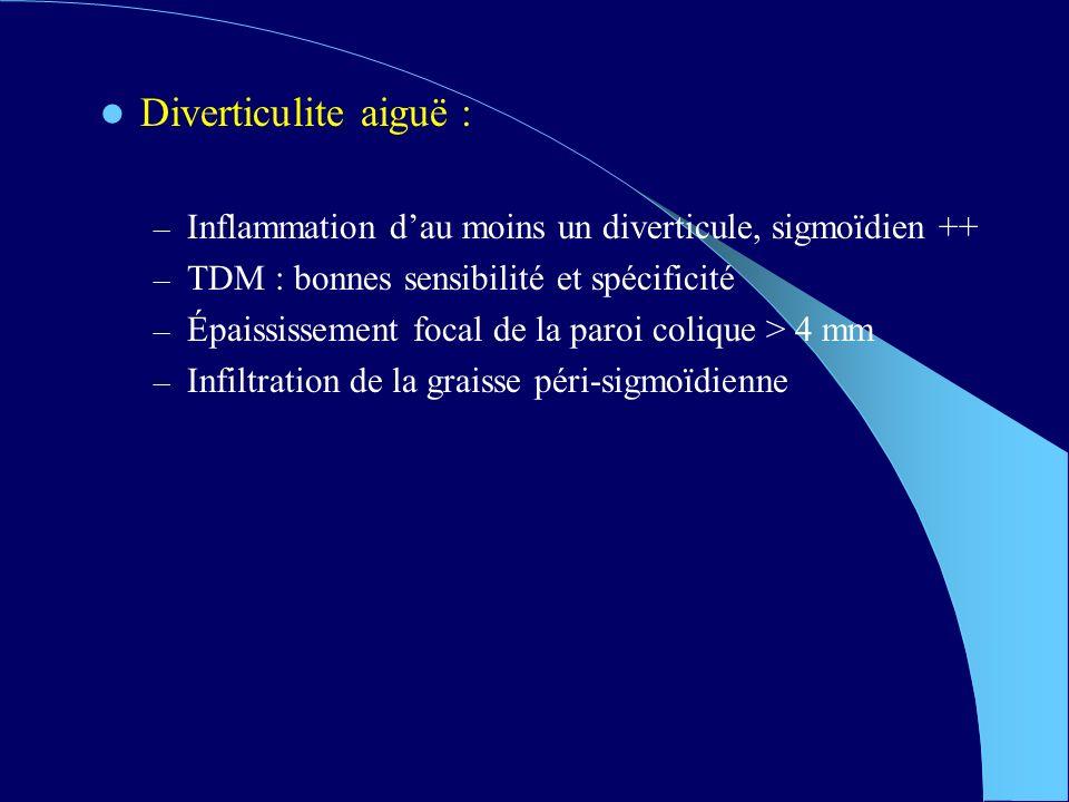 Diverticulite aiguë : Inflammation d'au moins un diverticule, sigmoïdien ++ TDM : bonnes sensibilité et spécificité.