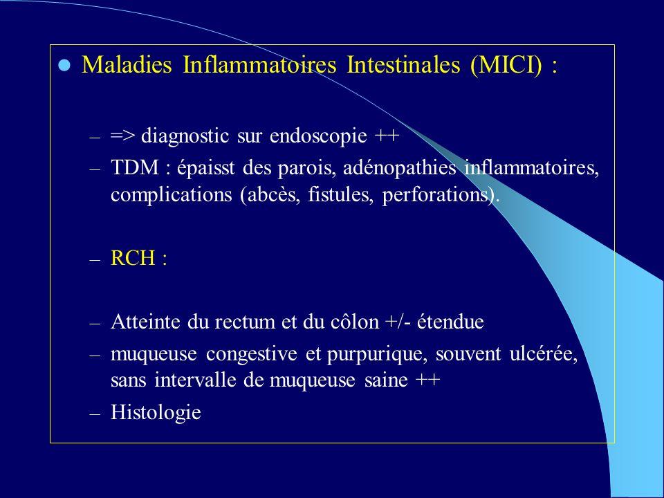 Maladies Inflammatoires Intestinales (MICI) :