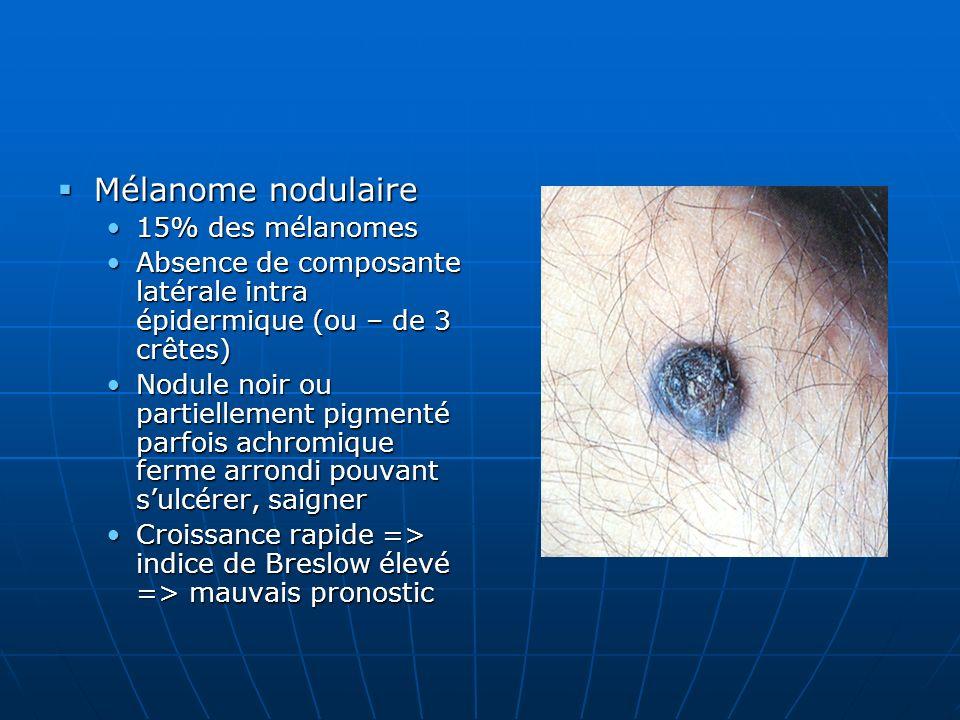 Mélanome nodulaire 15% des mélanomes