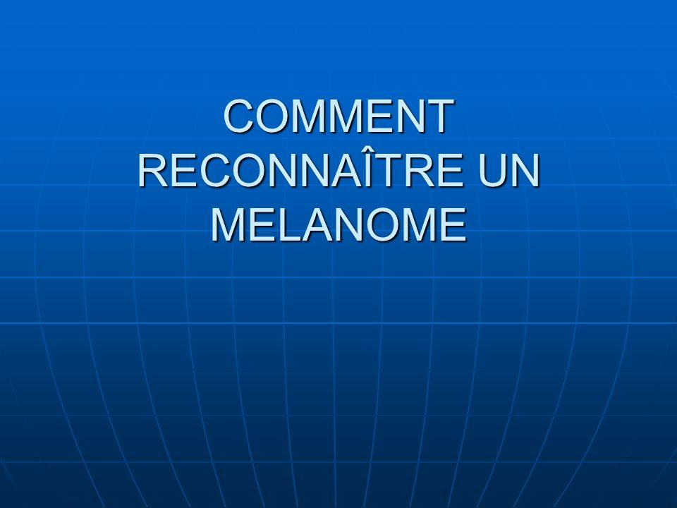 COMMENT RECONNAÎTRE UN MELANOME