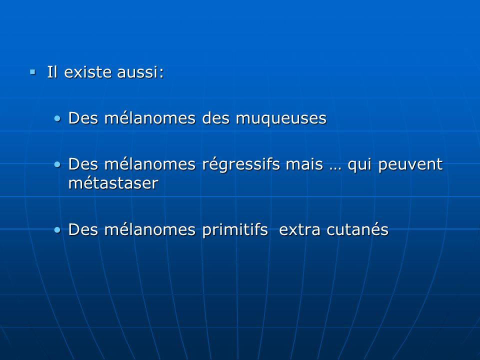 Il existe aussi: Des mélanomes des muqueuses. Des mélanomes régressifs mais … qui peuvent métastaser.