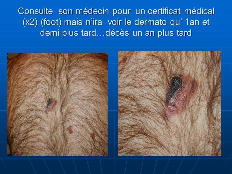 Consulte son médecin pour un certificat médical (x2) (foot) mais n'ira voir le dermato qu' 1an et demi plus tard…décès un an plus tard