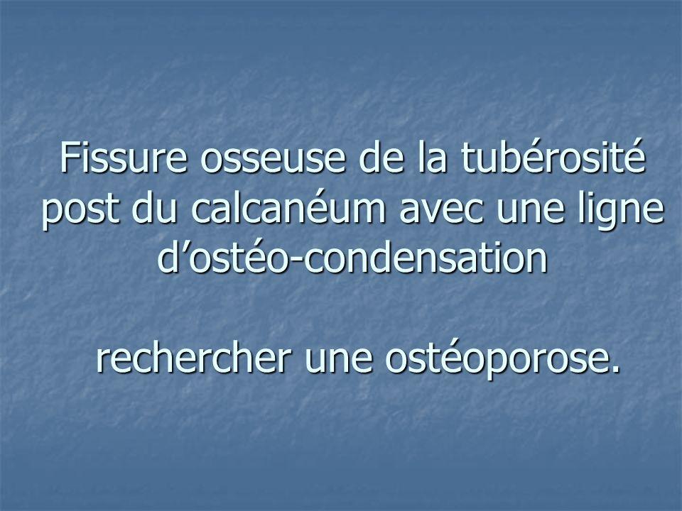 Fissure osseuse de la tubérosité post du calcanéum avec une ligne d'ostéo-condensation rechercher une ostéoporose.