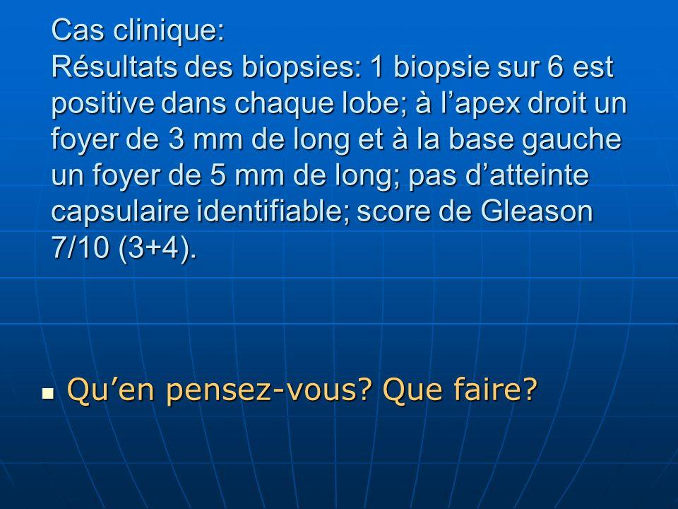 Cas clinique: Résultats des biopsies: 1 biopsie sur 6 est positive dans chaque lobe; à l'apex droit un foyer de 3 mm de long et à la base gauche un foyer de 5 mm de long; pas d'atteinte capsulaire identifiable; score de Gleason 7/10 (3+4).