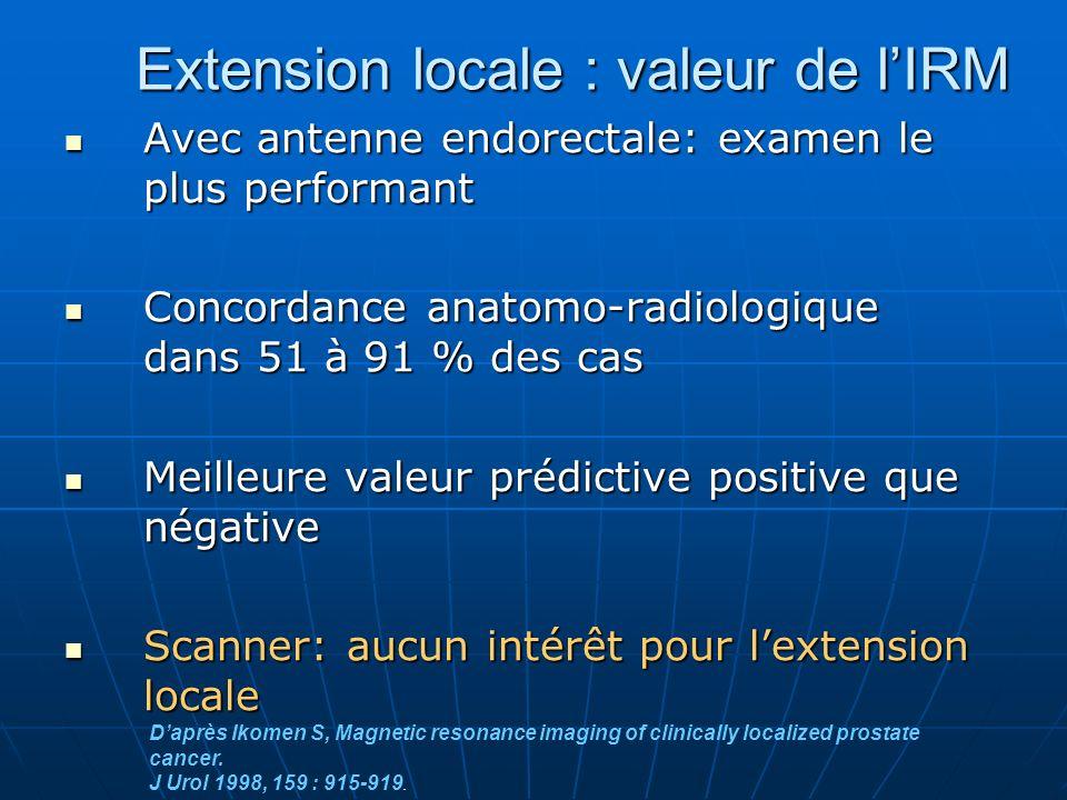 Extension locale : valeur de l'IRM