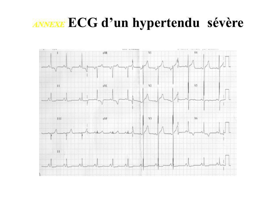 ANNEXE ECG d'un hypertendu sévère