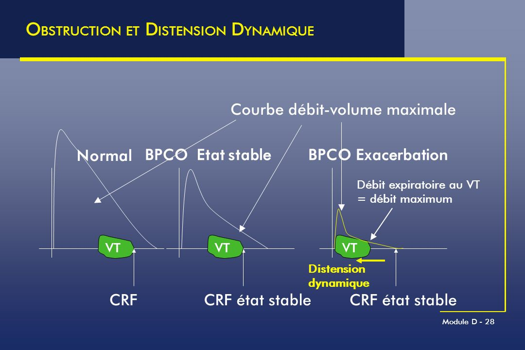 OBSTRUCTION ET DISTENSION DYNAMIQUE