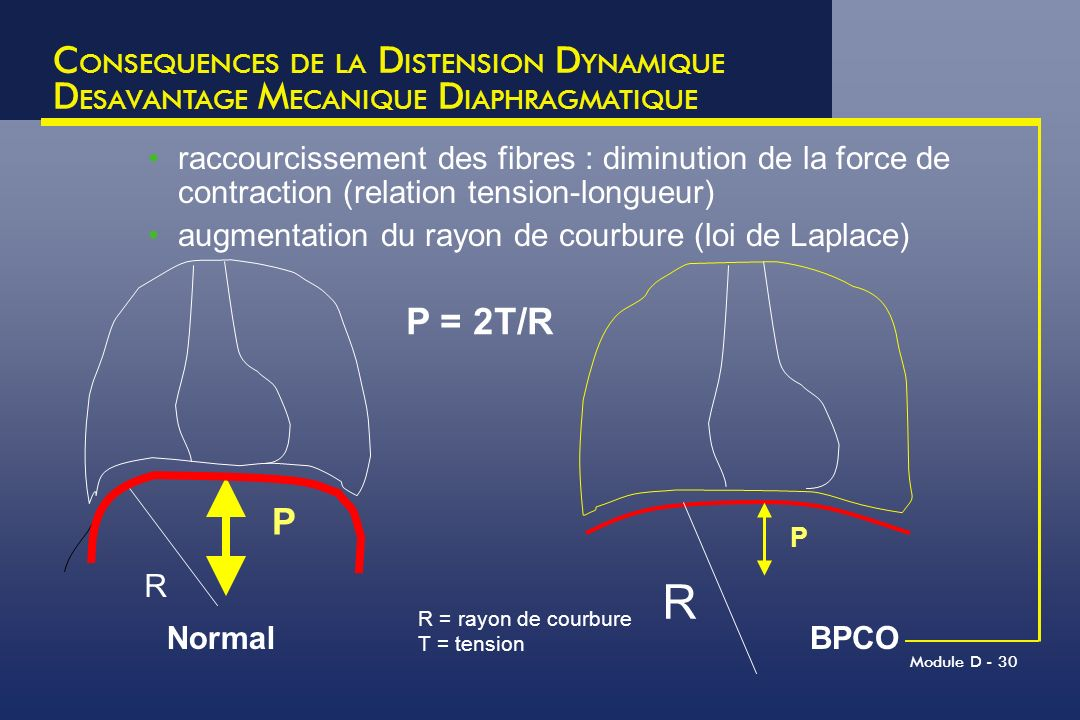 R CONSEQUENCES DE LA DISTENSION DYNAMIQUE