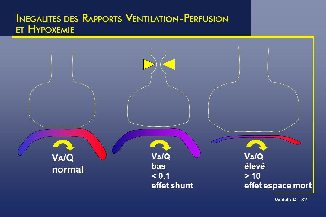 INEGALITES DES RAPPORTS VENTILATION-PERFUSION ET HYPOXEMIE