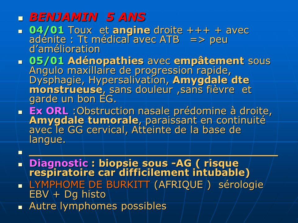 BENJAMIN 5 ANS 04/01 Toux et angine droite +++ + avec adénite : Tt médical avec ATB => peu d'amélioration.