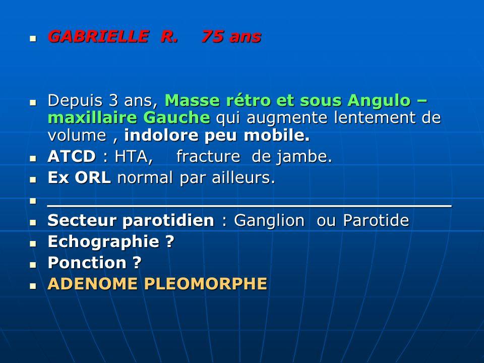 GABRIELLE R. 75 ans Depuis 3 ans, Masse rétro et sous Angulo –maxillaire Gauche qui augmente lentement de volume , indolore peu mobile.