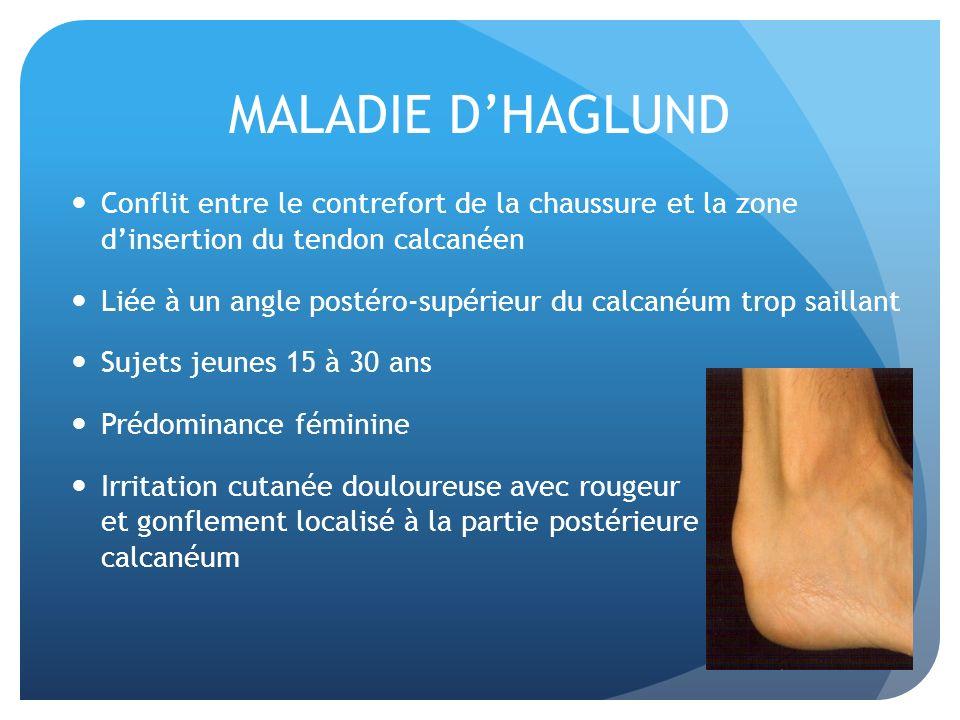 MALADIE D'HAGLUND Conflit entre le contrefort de la chaussure et la zone d'insertion du tendon calcanéen.