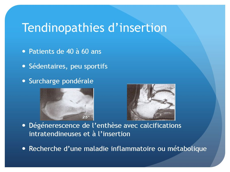 Tendinopathies d'insertion