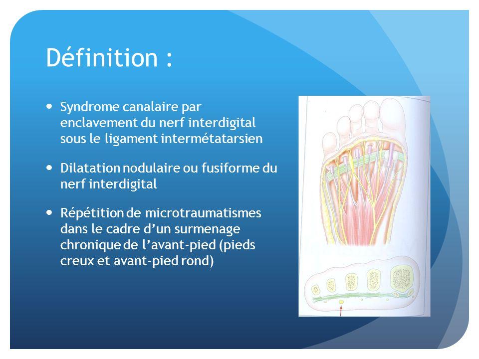 Définition : Syndrome canalaire par enclavement du nerf interdigital sous le ligament intermétatarsien.