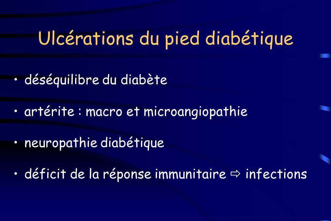 Ulcérations du pied diabétique