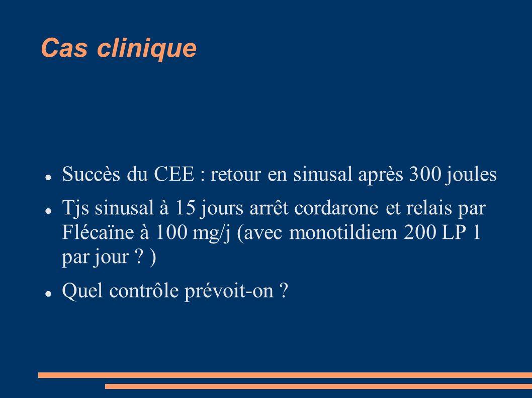 Cas clinique Succès du CEE : retour en sinusal après 300 joules