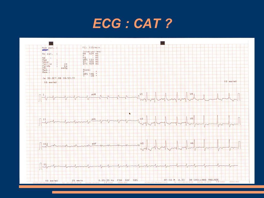 ECG : CAT