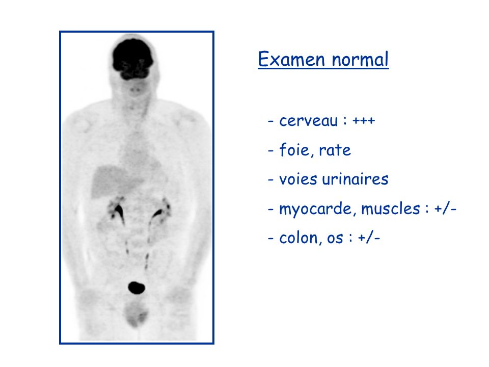 Examen normal - cerveau : foie, rate - voies urinaires - myocarde, muscles : +/- - colon, os : +/-