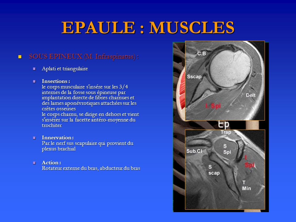EPAULE : MUSCLES SOUS EPINEUX (M. Infraspinatus) :