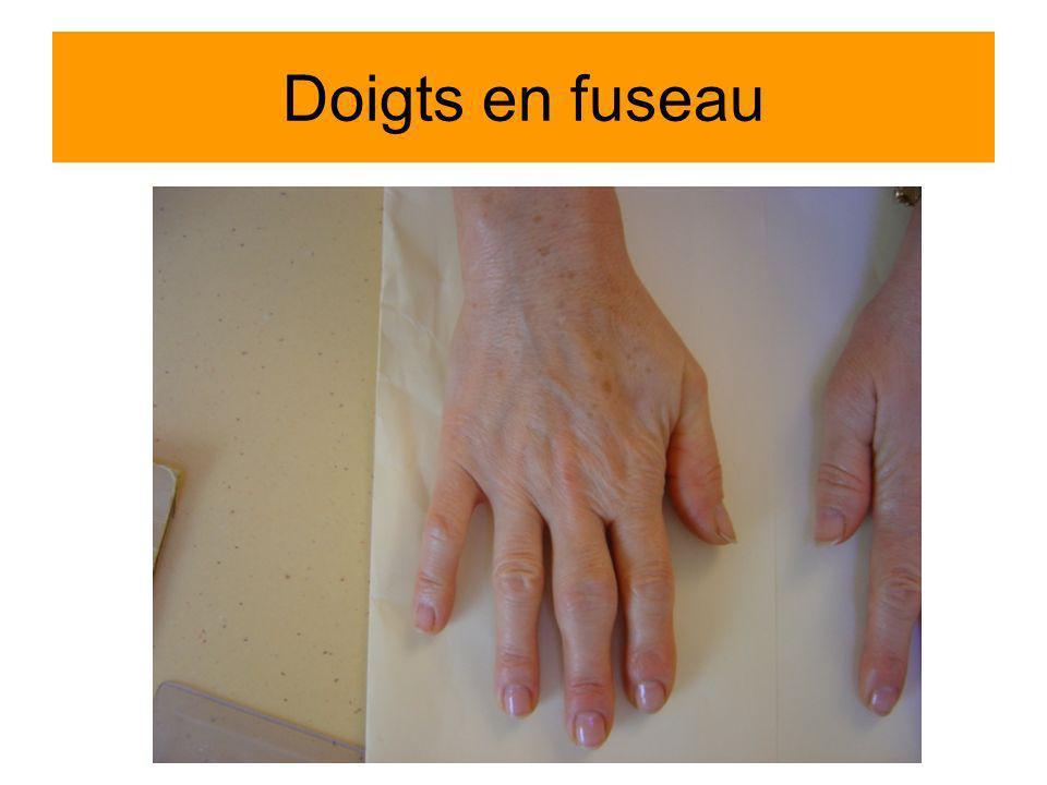 Doigts en fuseau Arthrite IPP 3 dte