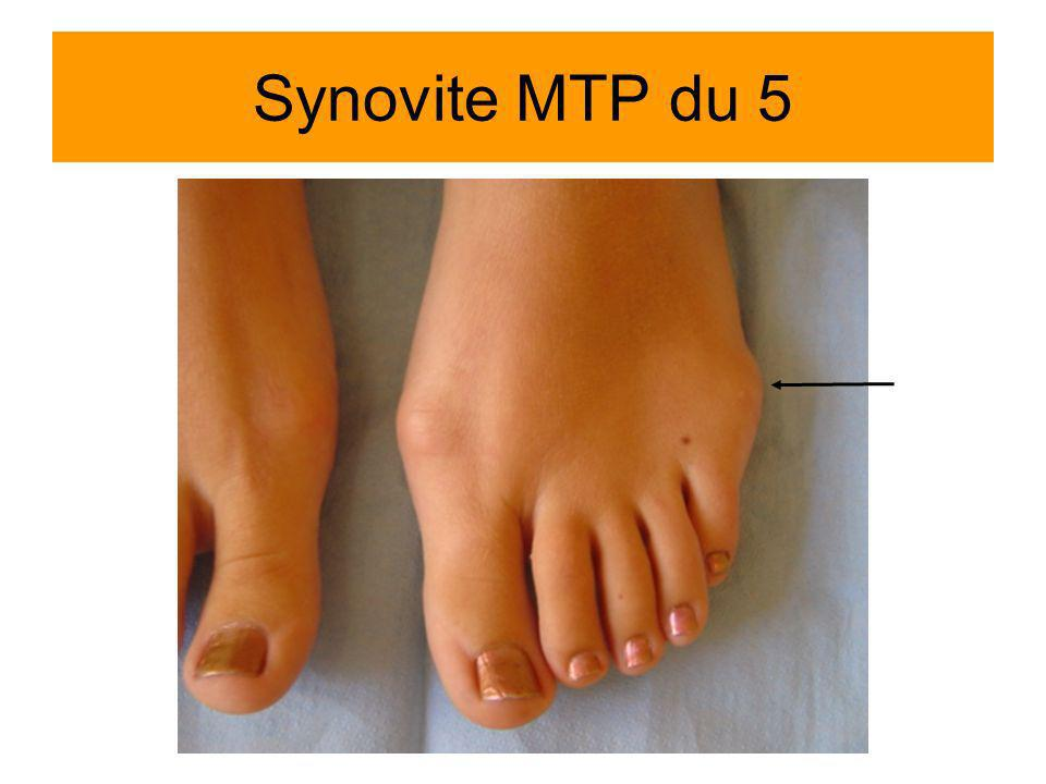 Synovite MTP du 5 Mme Brulaire Sabrina