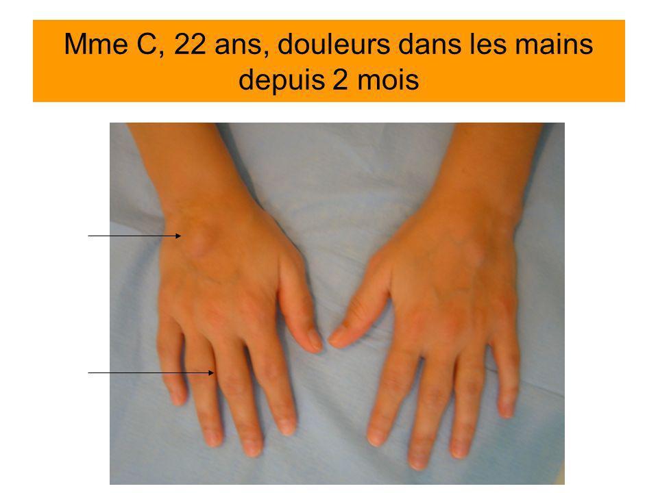 Mme C, 22 ans, douleurs dans les mains depuis 2 mois