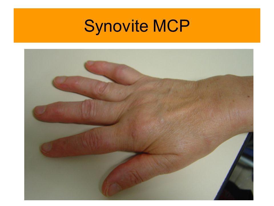 Synovite MCP Arthrite MCP2-3 Mme Rethoré Colette
