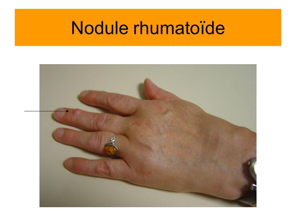 Nodule rhumatoïde Polyarthrite + nodule rhumatoïde Mme Rethoré Colette