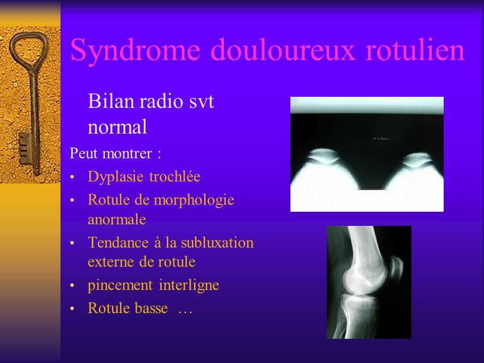 Syndrome douloureux rotulien