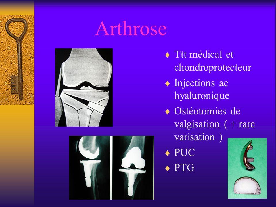 Arthrose Ttt médical et chondroprotecteur Injections ac hyaluronique