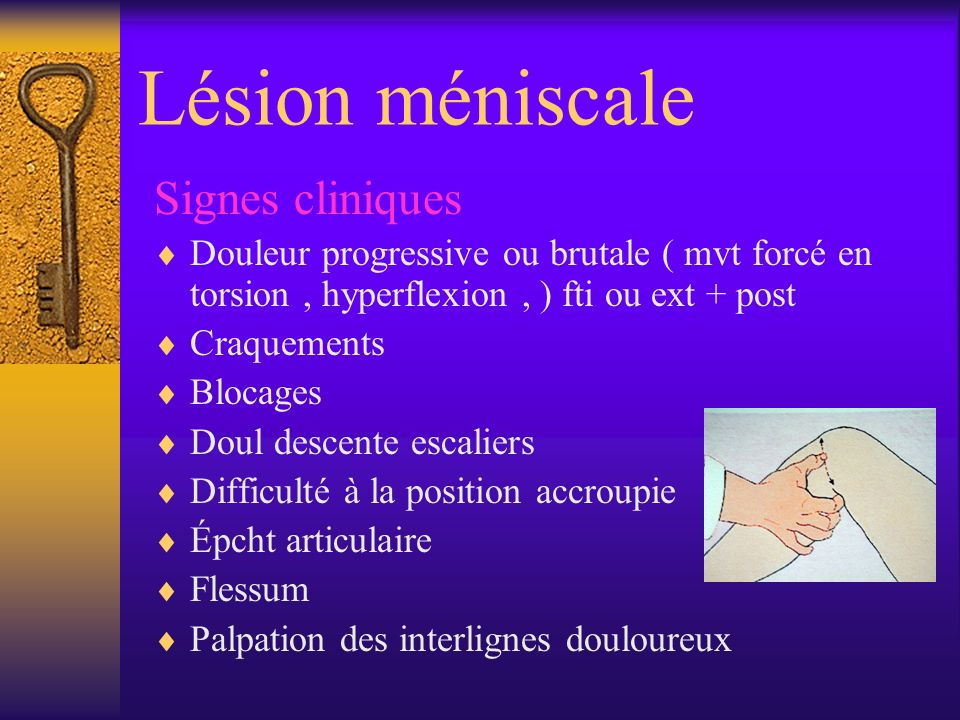Lésion méniscale Signes cliniques