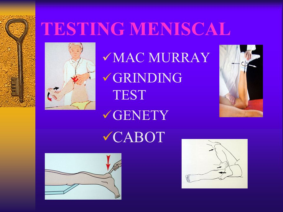 TESTING MENISCAL MAC MURRAY GRINDING TEST GENETY CABOT