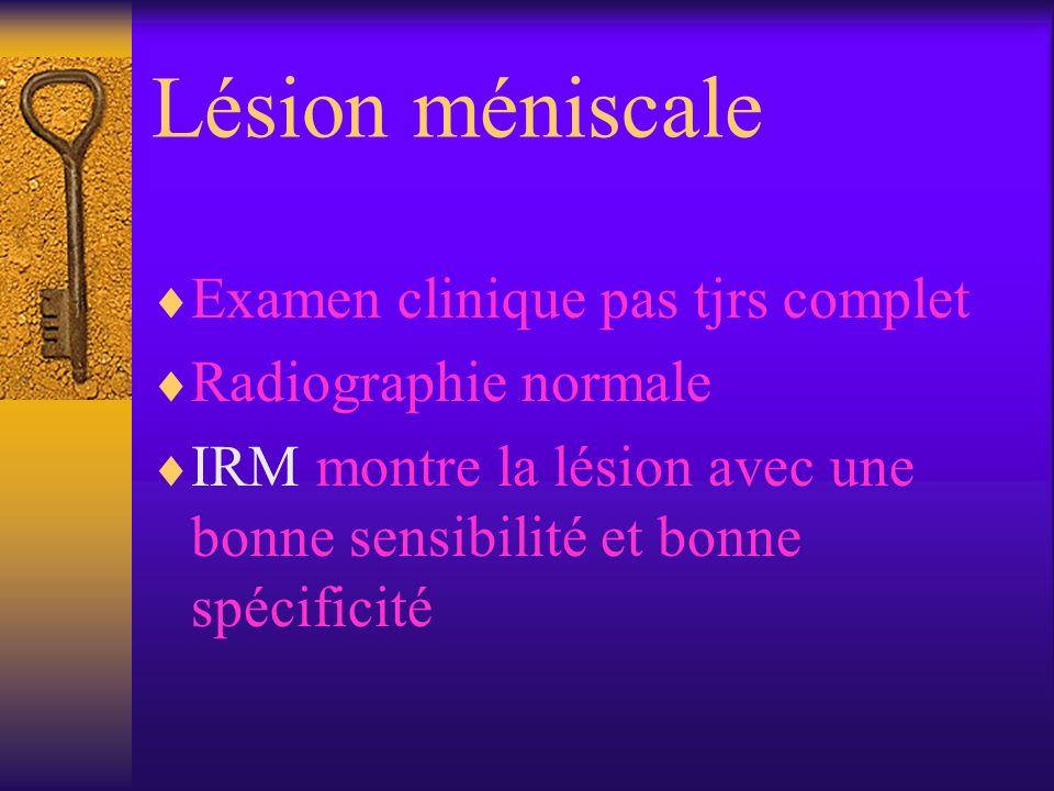 Lésion méniscale Examen clinique pas tjrs complet Radiographie normale