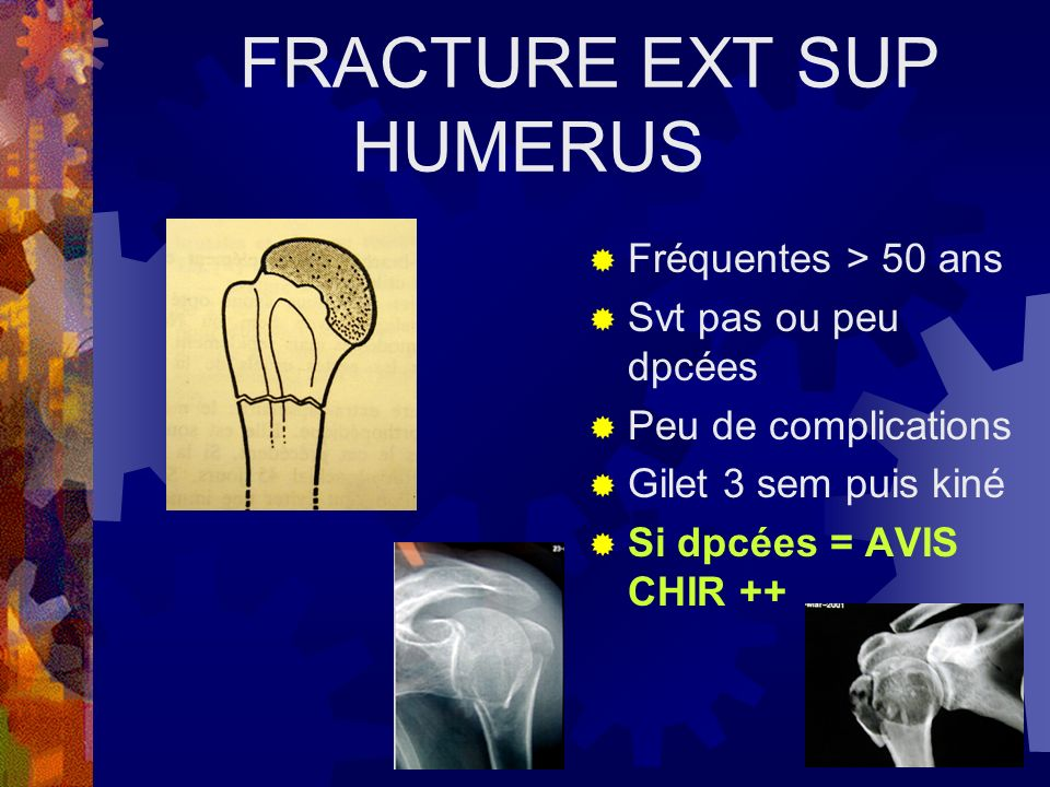 FRACTURE EXT SUP HUMERUS