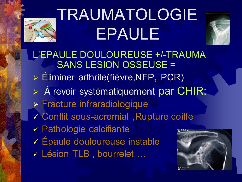 TRAUMATOLOGIE EPAULE L'EPAULE DOULOUREUSE +/-TRAUMA SANS LESION OSSEUSE = Éliminer arthrite(fièvre,NFP, PCR)