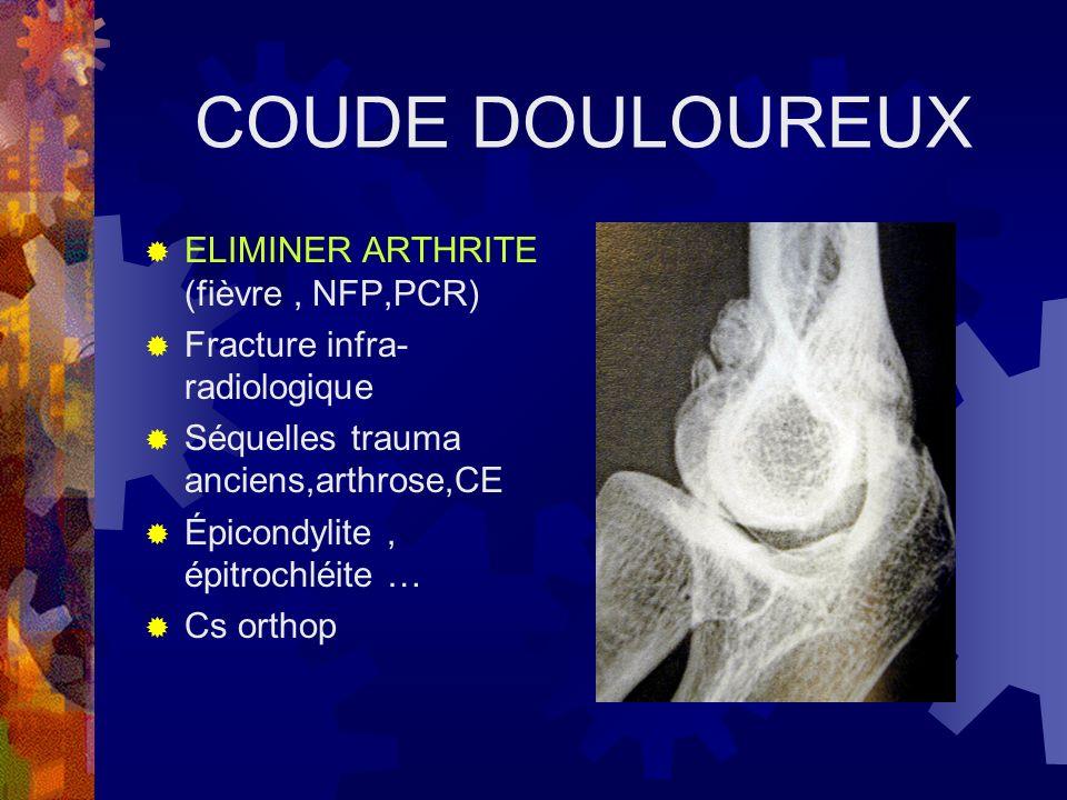 COUDE DOULOUREUX ELIMINER ARTHRITE (fièvre , NFP,PCR)